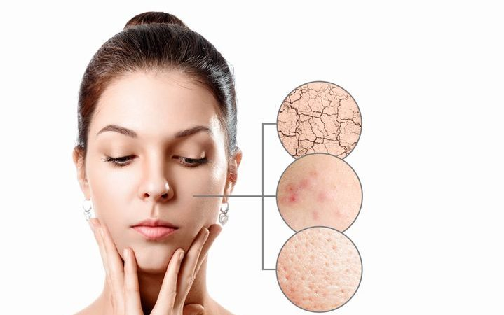 皮膚乾燥補充膠原蛋白